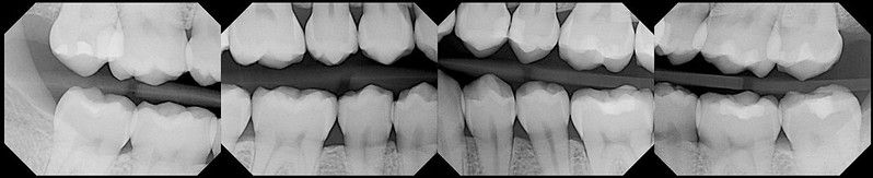 Dental work is stable with good career progression.